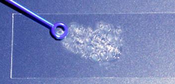 Enterococchi catalasi