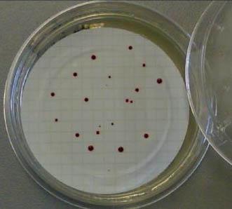 Enterococchi slanetz2