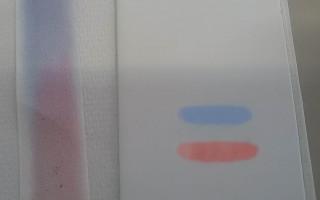 Cromatografia particolare gel